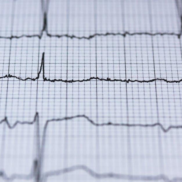 Visita cardiologica ECG