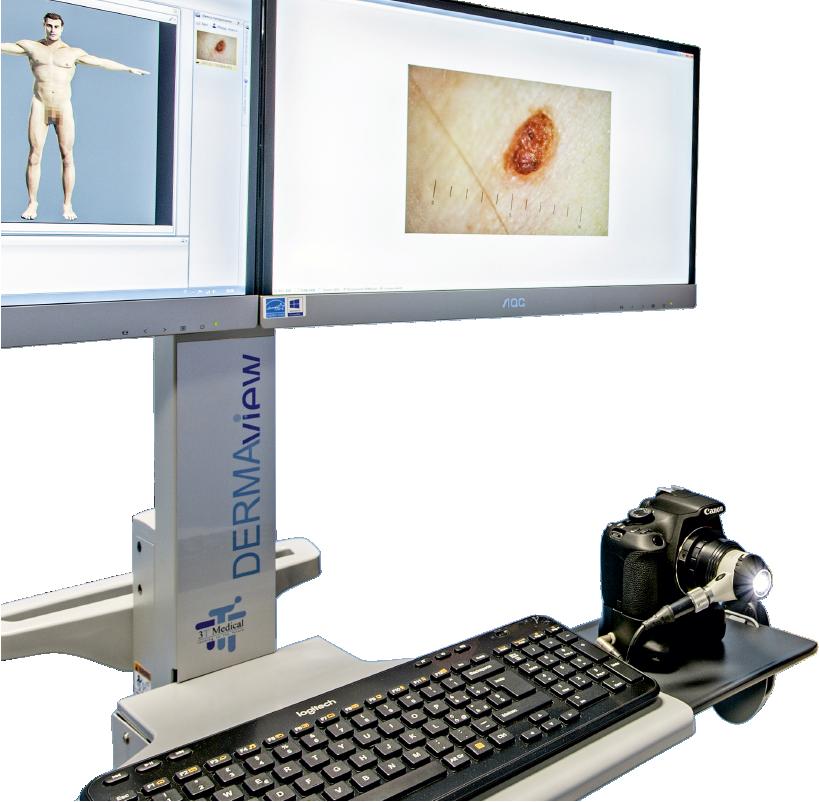 Brugnoni Group Sanità - Prevenzione melanoma 1