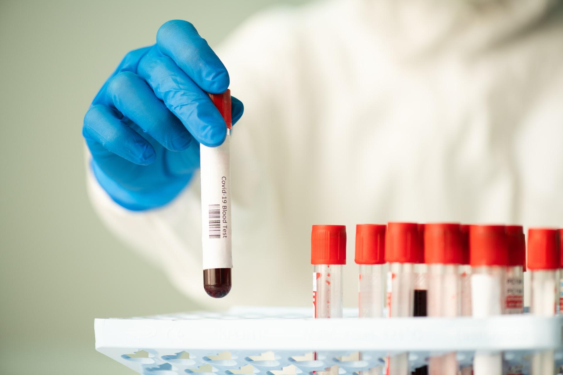 Protos-Centro-Medico-test-covid